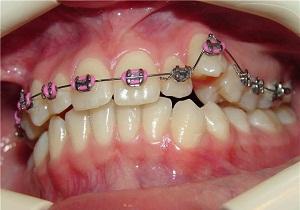 удаление дистопированного зуба