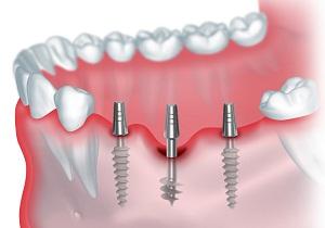 базальная имплантация зубов цены