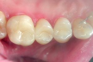 нумерация зубов человека схема