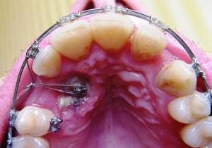 удаление ретинированного дистопированного зуба