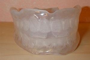 можно ли выпрямить зубы без брекетов