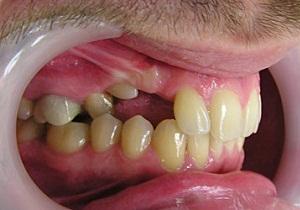ретинированного дистопированного зуба что это