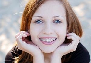скобы на зубы фото