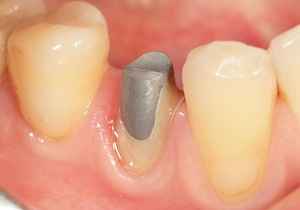 штифт зубной