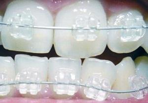 сколько стоят скобы для зубов