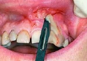 антибиотики в стоматологии при воспалении надкостницы