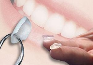 ультраниры цена за 1 зуб