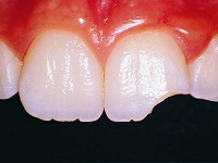 откололся кусочек зуба