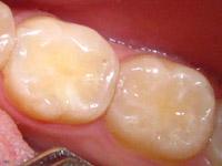 пломбы для зубов